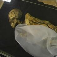 """""""Donzela do Gelo"""" morreu com câncer de mama há 2.500 anos"""